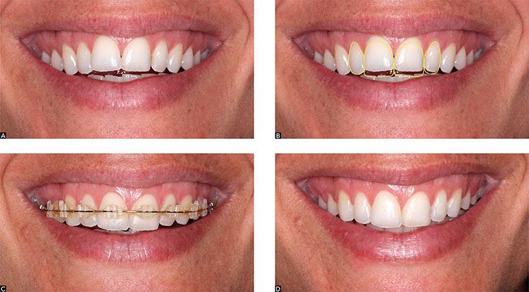 Народные способы выравнивания зубов