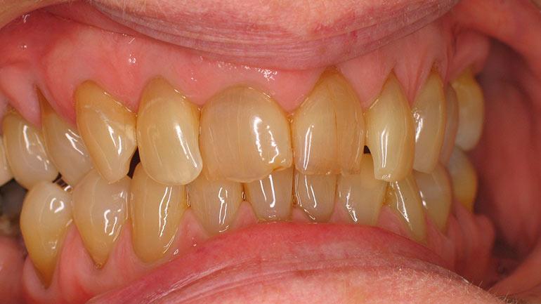Пожелтели зубы причины