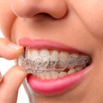 Какие бывают капы для отбеливания зубов