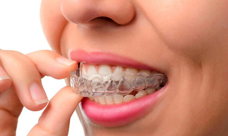 Капы для отбеливания зубов - установка в Москве по доступной цене: ЮЗАО