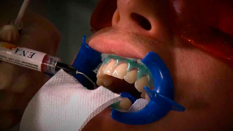 лазерное отбеливание зубов в спб