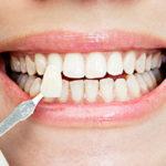 Вставить зуб: во сколько обойдется и куда обратиться?