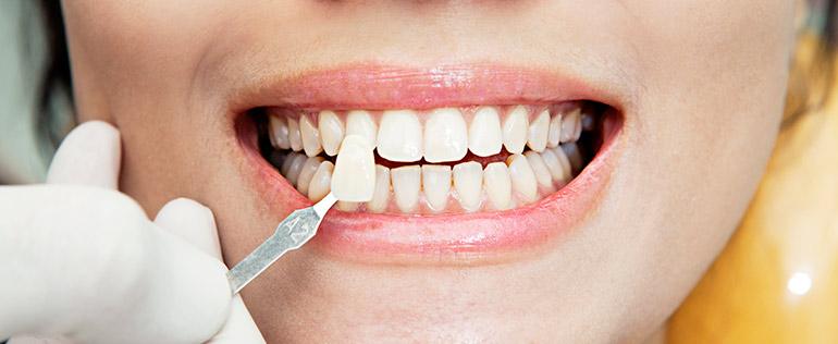 Как вставить передний верхний зуб