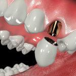 Формирователь десны при имплантации зубов