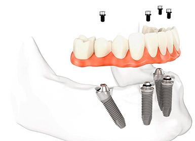 Зубные импланты имплантаты Нобель Nobel Biocare