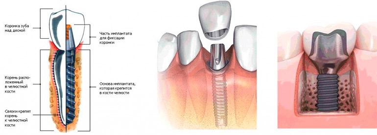 Как ставят коронку на имплант