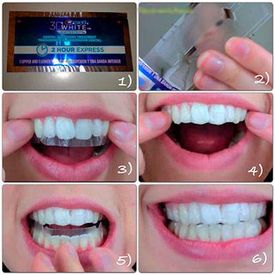 Инструкция как пользоваться отбеливающими полосками для зубов