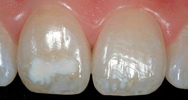Подводные камни развития гипоплазии эмали зубов у детей и взрослых